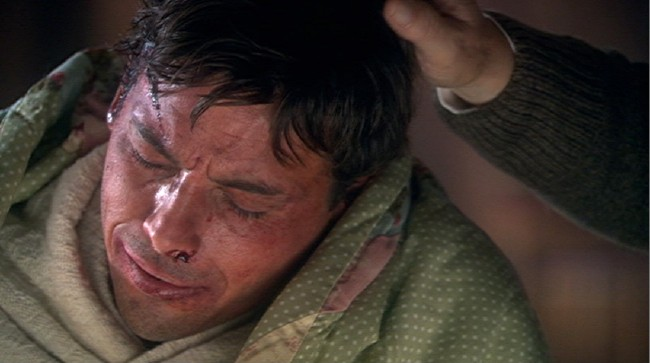 A male hand touches Skeet Ulrich's head as his face – all cuts and caked blood – betrays sorrow