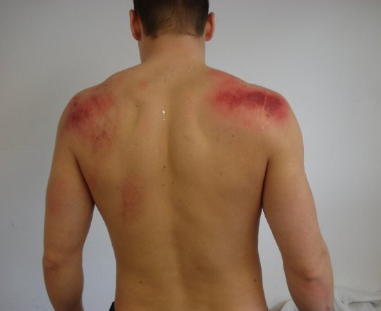 Shirtless guy with long red marks on upper back