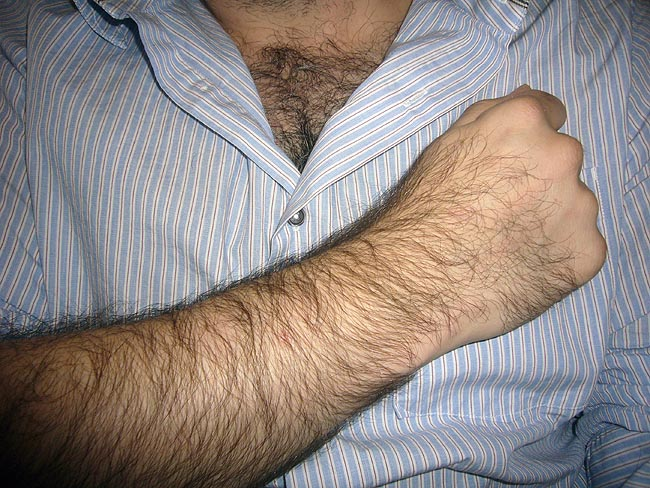 Hirsute arm held across rumpled, somewhat unbuttoned shirt